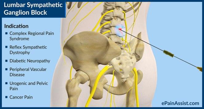 lumbar-sympathetic-ganglion-block-b